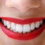 【セブでお手軽ホワイトニング】〜留学中に綺麗な白い歯を手に入れよう‼︎〜